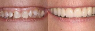 Before and after smile picture of a patient that Dr. Starr worked on.