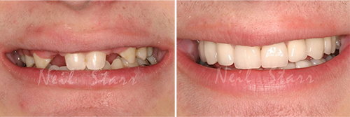Before after smile of a patient at Dr. Starr's Office, in Washington DC,