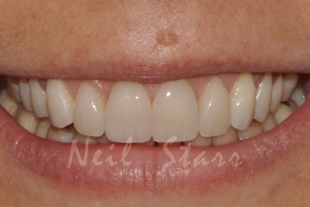 Veneers at Dr. Starr's Office, in Washington DC,