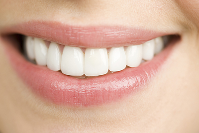 What Is Dental Attrition?