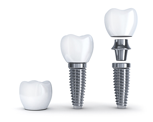 Dental Implant Materials at Dr. Starr's Office, in Washington DC,